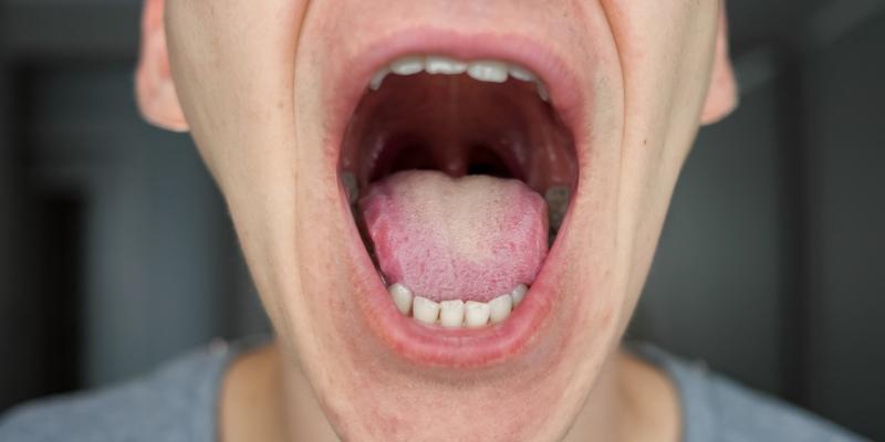herpes munden